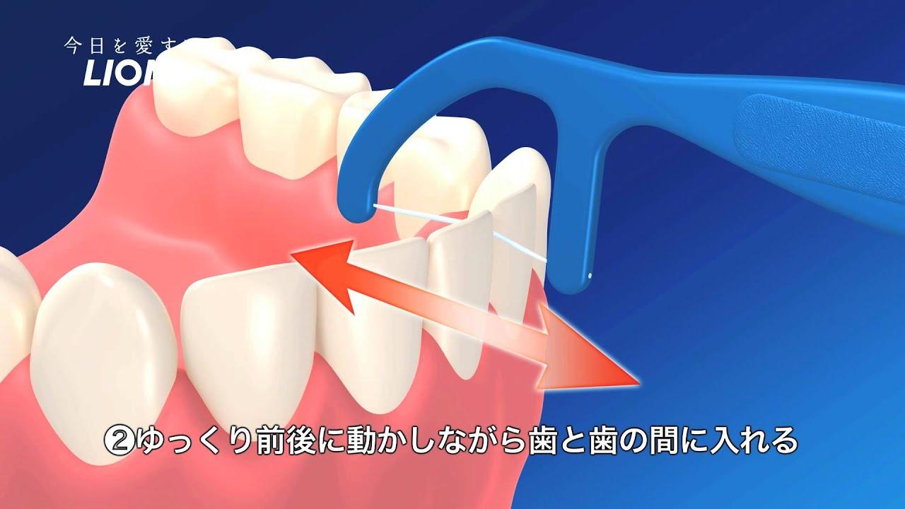 臭い フロス 歯 間