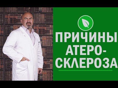 📣⁉️ Причины атеросклероза, симптомы, диагностика и лечение - откуда берется атеросклероз