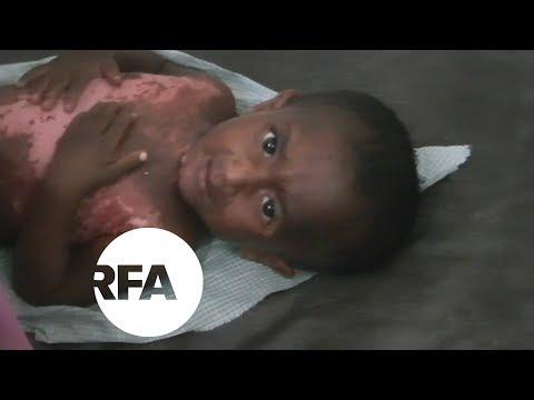 Rohingya with Scars of War Fill Bangladesh Hospitals | Radio Free Asia (RFA)