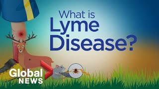 Terungkap, Bintang Pop Justin Bieber Menderita Penyakit Lyme.
