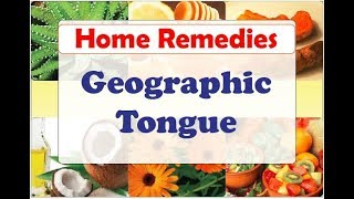 Home Remedies for Geographic Tongue | Natural Home Remedies for Geographic Tongue