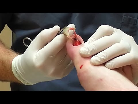 WARNING! Toenail Fungus Removal + The Best Treatment to Get Rid of Toenail Fungus