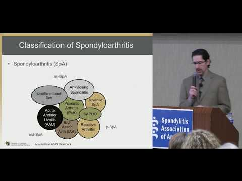 Medical Management of Spondyloarthritis Presented by Liron Caplan, MD PhD