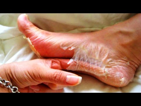 Skin Peeling, Scab Removal, Doornob Size Cysts & Bizarre Medical