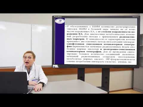 Лекция «Безболевая (немая) ишемия миокарда:  диагностика и лечение».