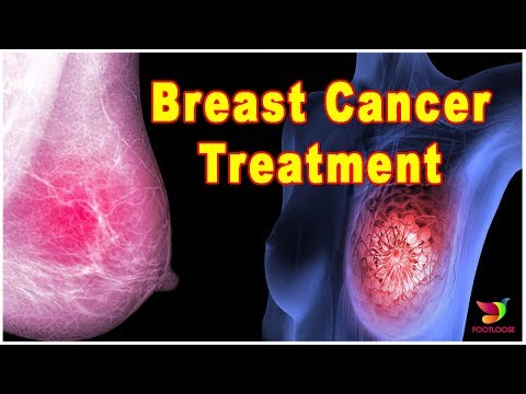 breast-cancer,-symptoms,-risk-factors,-and-treatment!!-cure-of-breast-cancer!!-footloose