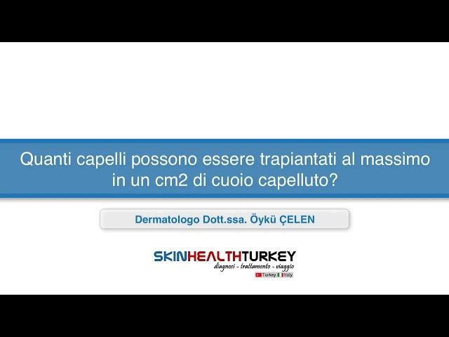 Trapianto Capelli-Quanti capelli possono essere trapiantati al massimo in un cm2 di cuoio capelluto?