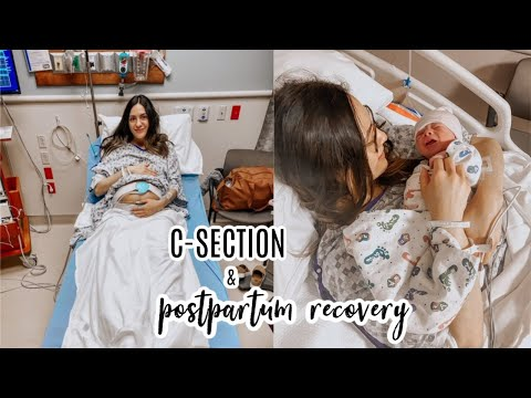 Breastfeeding After Your C-Section