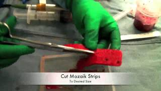 Surgical Instruments - Mozaik Graft