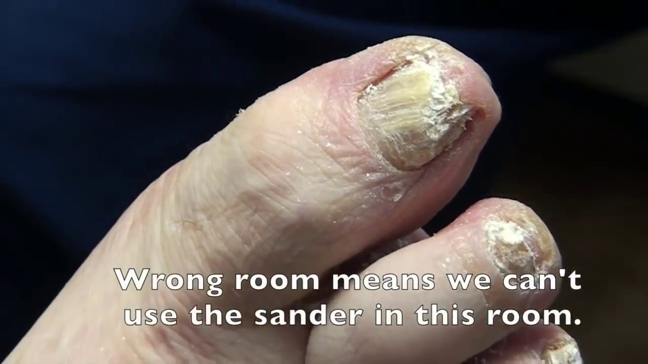Thickest Nails on the Net - Dr. Nail Nipper - YouTube