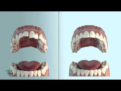 MBrace - The Invisible Solution for That Perfect Winning Smile