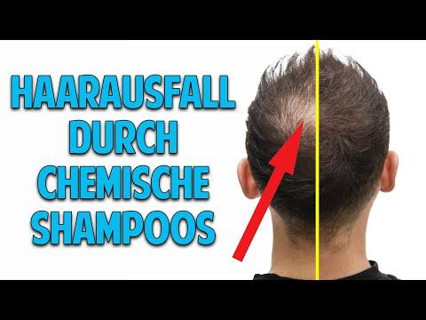 Haarausfall, graue Haare & Schuppen: Ohne chemische Shampoos zu natürlich gesunden & schönen Haaren