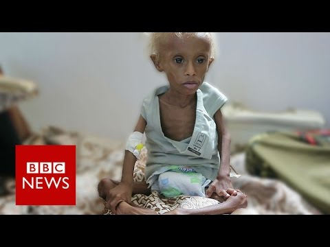 The war in Yemen, which began early last year when the government was overthrown by rebel forces, has pushed the country to the brink of famine. This video contains distressing scenes from the start. See more from BBC Our World\'s documentary Starving Yemen this weekend on BBC World, BBC News and iPlayer.  Please subscribe HERE http://bit.ly/1rbfUog  World In Pictures https://www.youtube.com/playlist?list=PLS3XGZxi7cBX37n4R0UGJN-TLiQOm7ZTP Big Hitters https://www.youtube.com/playlist?list=PLS3XGZxi7cBUME-LUrFkDwFmiEc3jwMXP Just Good News https://www.youtube.com/playlist?list=PLS3XGZxi7cBUsYo_P26cjihXLN-k3w246
