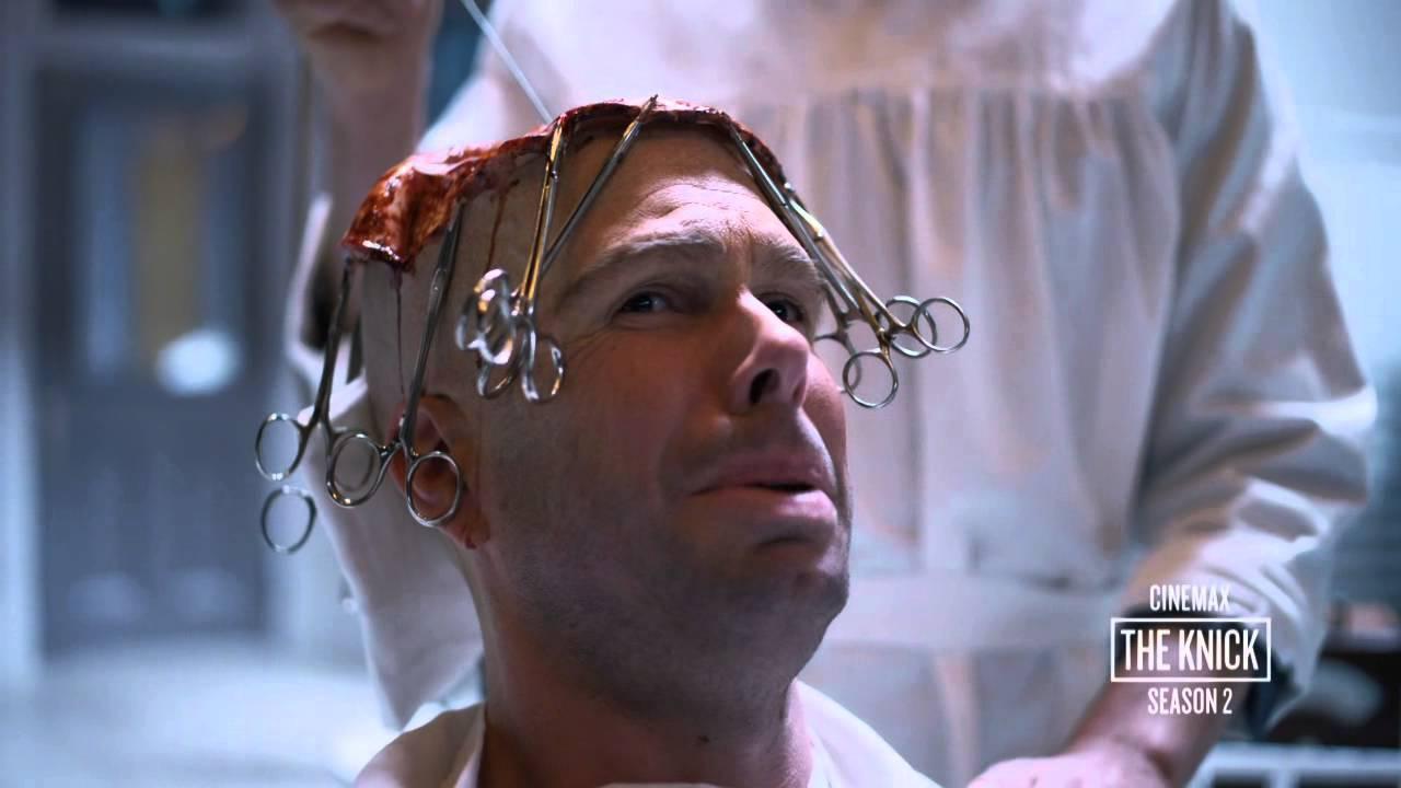 Download The Knick Season 2: Body Shop  Brain Surgery (Cinemax)