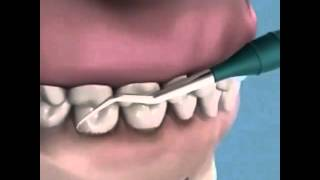 ПРОФЕССИОНАЛЬНАЯ ГИГИЕНА ПОЛОСТИ РТА В ЦИДК(Последовательность следующая: сначала чистятся зубные камни, затем пигментированный налет. Назубные и..., 2016-04-09T21:12:58.000Z)