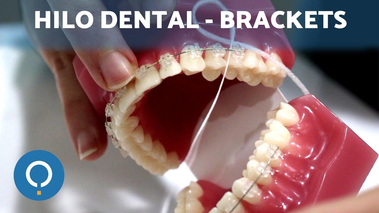 La como brackets dental con usar seda