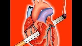 Отказ от курения. 5 причин бросить курить. Часть 1.(Почему бросить курить - это жизненно необходимо. В этом видео все о страшном вреде курения. Здесь (http://stirin.ru/q..., 2015-05-23T18:46:39.000Z)