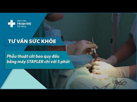 Phẫu thuật cắt bao quy đầu bằng máy STAPLER chỉ với 5 phút | Bệnh viện Hoàn Mỹ Đà Nẵng