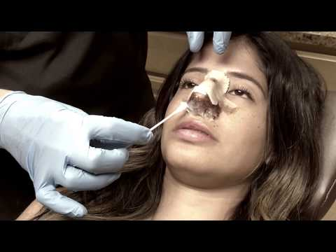 How To Properly Clean Your Nose After Rhinoplasty Surgery