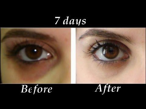 How to Remove Under eye Dark Circles in 7 days | DIY Dark ...