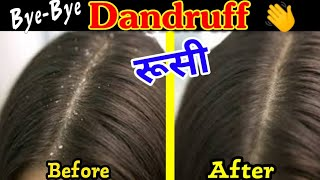 Best home remedies for dandruff treatment for dry scalp and oily scalp | Dandruff ( रूसी ) remedy