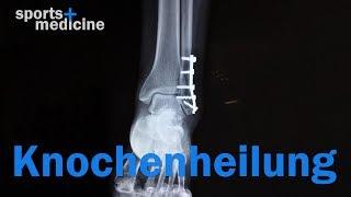Wie heilt der Knochen?