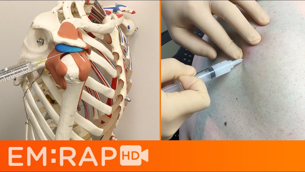 Subacromial Bursa Injection For Impingement Syndrome Youtube