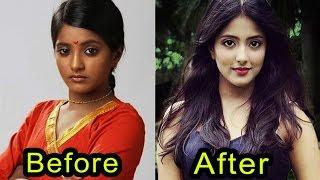 Dark Skin Tv Actress Before & After | Unbelievable Transformation