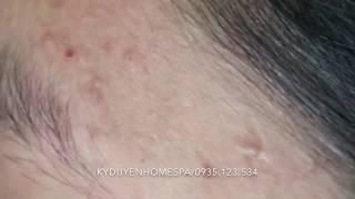 Điều trị mụn đầu đen 17/01/2018 | Kỳ Duyên Home Spa