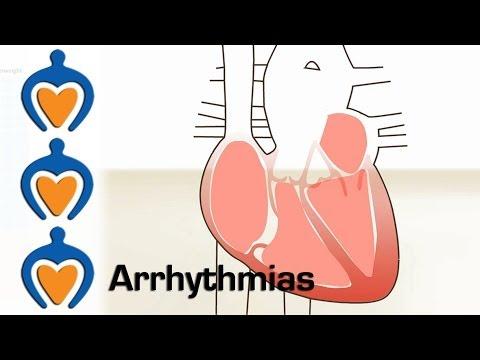 Arrhythmias - What is an arrhythmia and how is it treated?