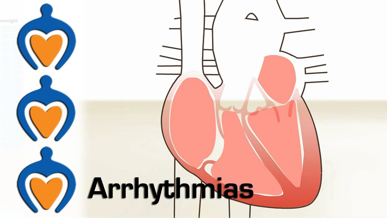 How to remove arrhythmia 84
