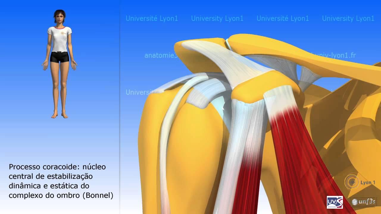 Cómo hacer que su Ibuprofeno dolor muscular se vea como un millón de dólares