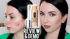 hqdefault - Clinique Acne Solutions Concealing Stick Review