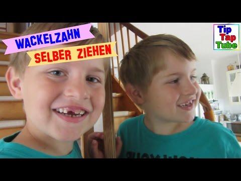 Wackelzahn selber ziehen Ash verliert seinen vierten Milchzahn TipTapTube Kinderkanal