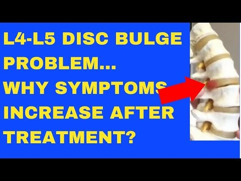 Why Does L4 L5 Disc Bulge Symptom Increase After Treatment? - Answered by Chiropractor in Vaughan