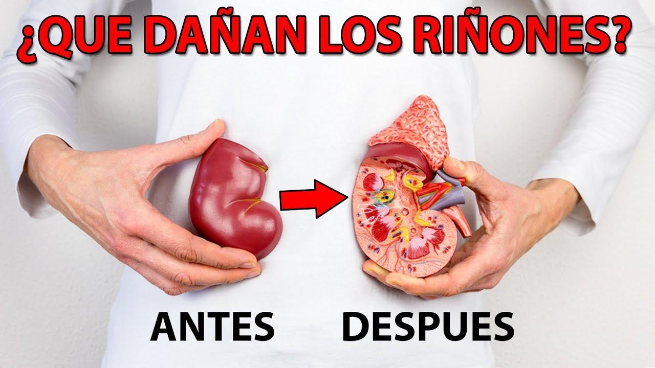 8 Alimentos que NO debes comer Dañan tus riñones