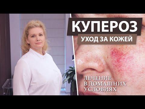 Лечение купероза на лице в домашних условиях. Купероз - что это?