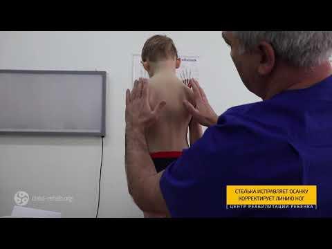 Индивидуальные Ортопедические Стельки: Лечение Сколиоза и Плоскостопия