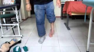 Vital Sampol - Analise fisioterapêutica na marcha em pé torto congênito do adulto