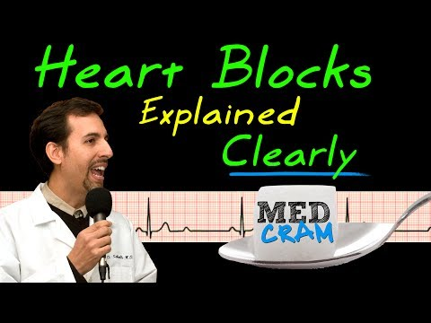 Heart Blocks On EKG / ECG Explained Clearly (MedCram EKG / ECG Course)