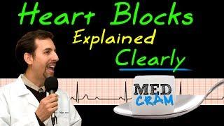 Heart Blocks on EKG / ECG Explained Clearly (MedCram EKG / ECG Course)