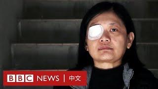 香港示威:右眼失明的印尼女記者控訴「警暴」- BBC News 中文