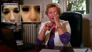 Rhinoplastie médicale : retoucher son nez sans bistouri – Dr Catherine de Goursac
