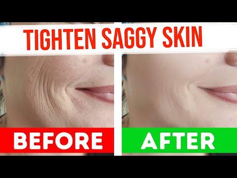 TIGHTEN SAGGY SKIN | Skin Tightening - How to Get Rid of Loose Flabby Skin
