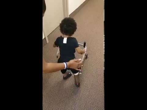 Kayden a two year old that had his right foot and his left amputated in January is learning how to walk with prosthetics.
