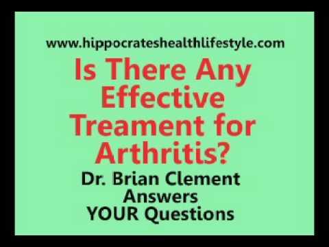 Rheumatoid Arthritis Treatment, Dr. Clement of Hippocrates