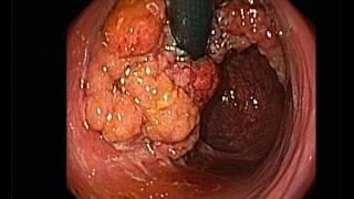 polype rectal