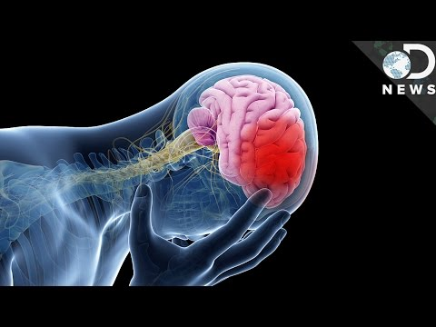 This Is What A Stroke Does To Your Body