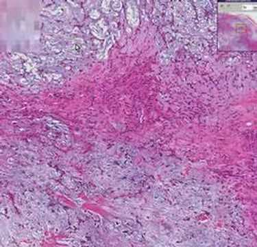 Histopathology Salivary Gland Pleomorphic Adenoma Mixed