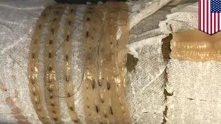 Cacing pita pencinta sushi menemukan cacing pita 5 kaki di perutnya TomoNews